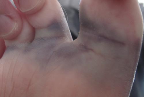 J'ai les pieds bleus